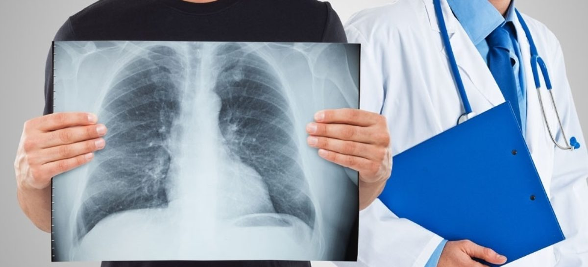 В прошлом году в Сальском районе выявлено 24 случая заболевания туберкулезом. 12 человек умерли