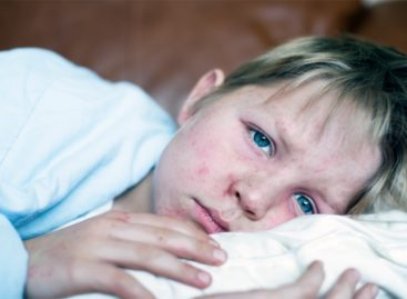 Корь: что нужно знать о быстром и опасном заболевании