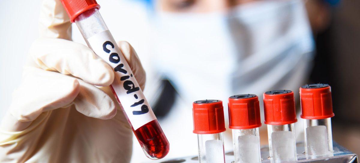 Коронавирус в Сальском районе 19 февраля: госпиталь заполнен на 77%